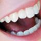 Estética Dental Galapagar