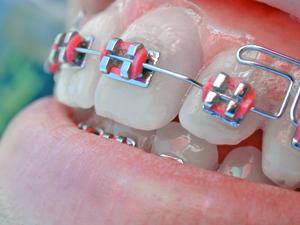 ortodoncia_300