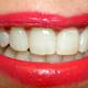 ortodoncia en Galapagar