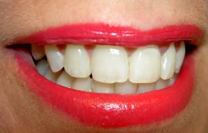clínica dental en Galapagar